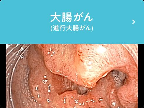 大腸がん(進行大腸がん)