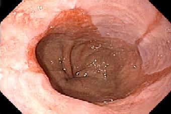 逆流性食道炎とバレット食道について2