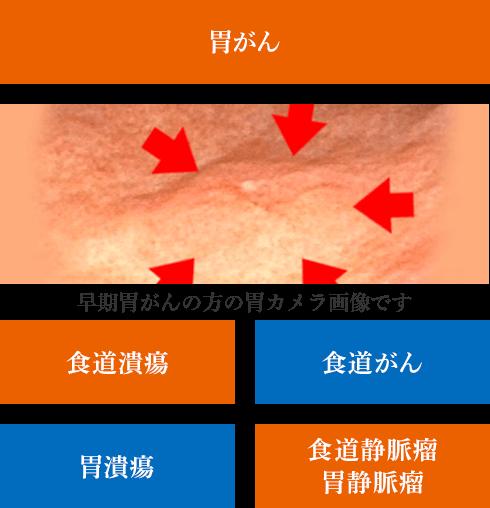 早期胃がんの方の胃カメラ画像です|京都の胃カメラは金光診療所|食道潰瘍・食道がん・胃潰瘍・食道静脈瘤・胃静脈瘤