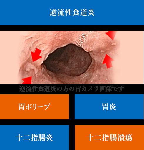 逆流性食道炎の方の胃カメラ画像です。|京都の胃カメラは金光診療所|胃ポリープ・胃炎・十二指腸炎・十二指腸潰瘍