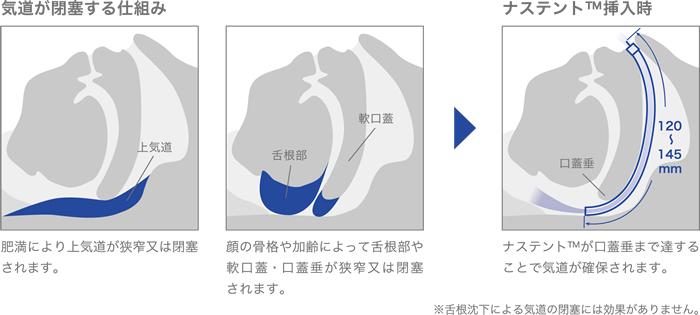 ナステントが気道の開存性を維持するメカニズム