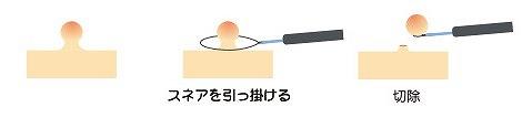 コールドポリペクトミーの流れ