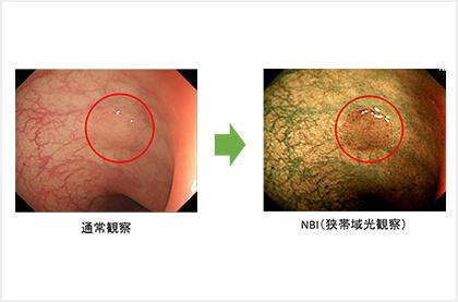 「NBI」ハイビジョン内視鏡で初期がんを早期に発見